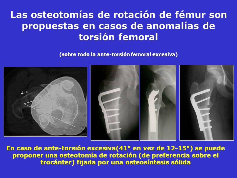 Las osteotomías de rotación de fémur son propuestas en casos de anomalías de torsión femoral (sobre todo la ante-torsión femoral excesiva) En caso de