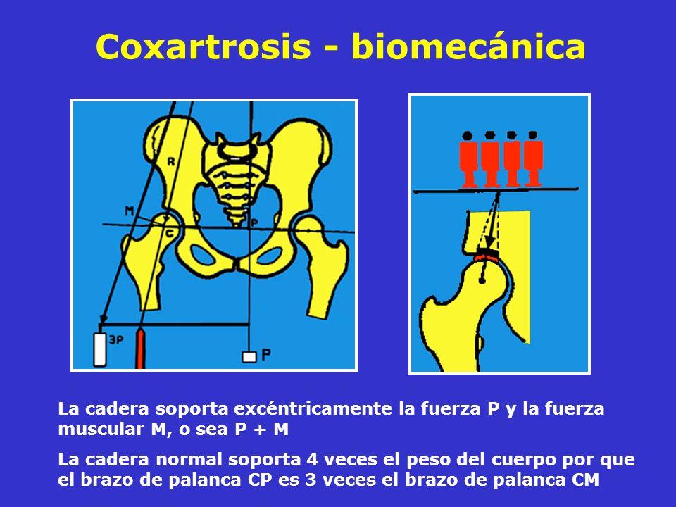 Coxartrosis - biomecánica La cadera soporta excéntricamente la fuerza P y la fuerza muscular M, o sea P + M La cadera normal soporta 4 veces el peso d