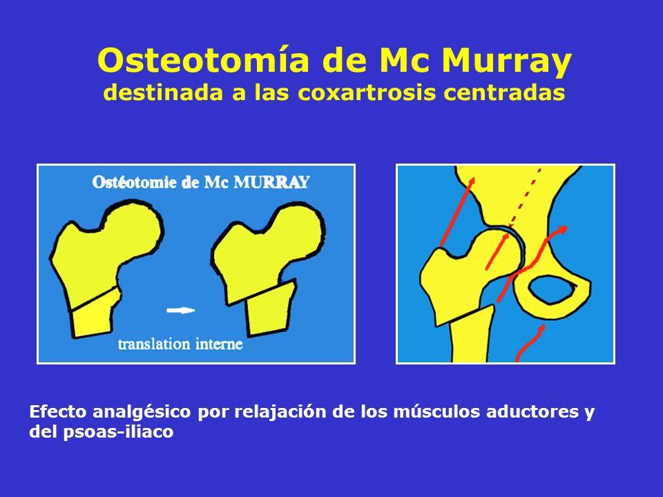 Osteotomía de Mc Murray destinada a las coxartrosis centradas Efecto analgésico por relajación de los músculos aductores y del psoas-iliaco