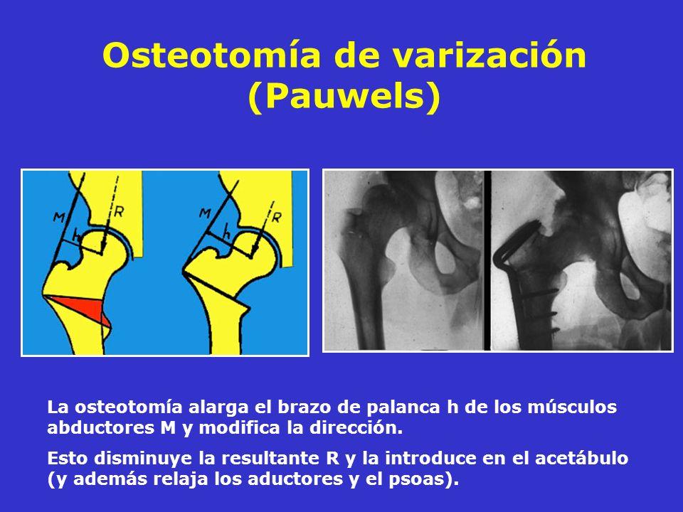 Osteotomía de varización (Pauwels) La osteotomía alarga el brazo de palanca h de los músculos abductores M y modifica la dirección. Esto disminuye la