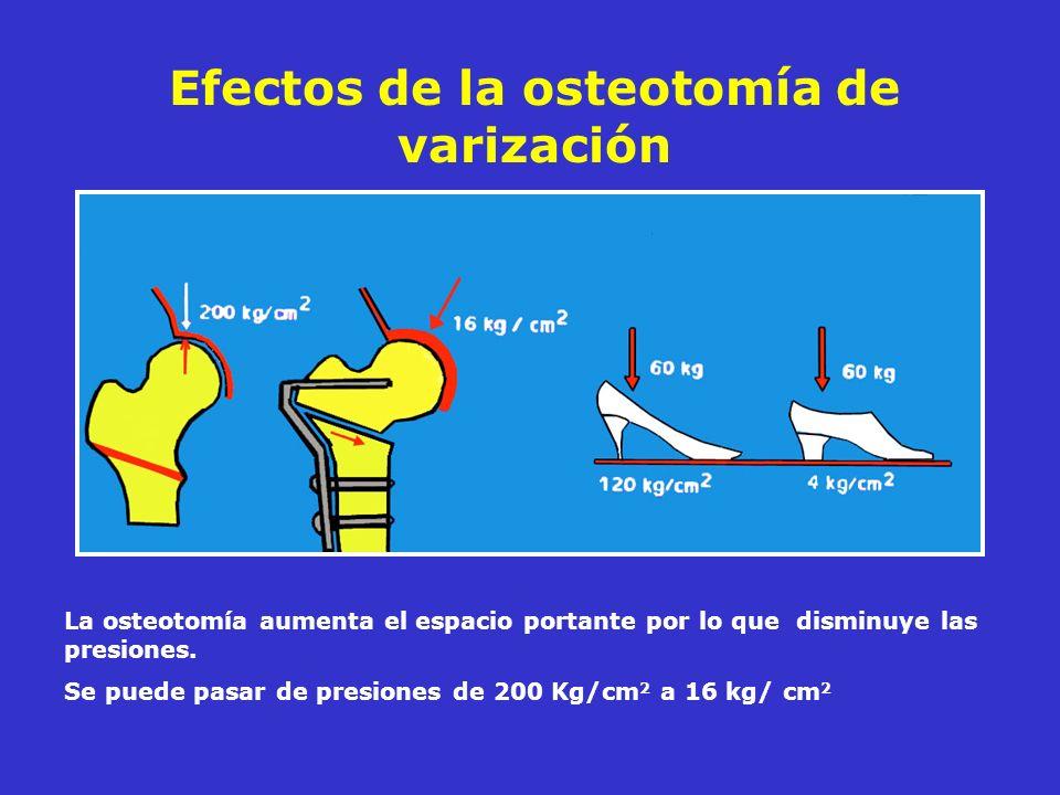 Efectos de la osteotomía de varización La osteotomía aumenta el espacio portante por lo que disminuye las presiones. Se puede pasar de presiones de 20