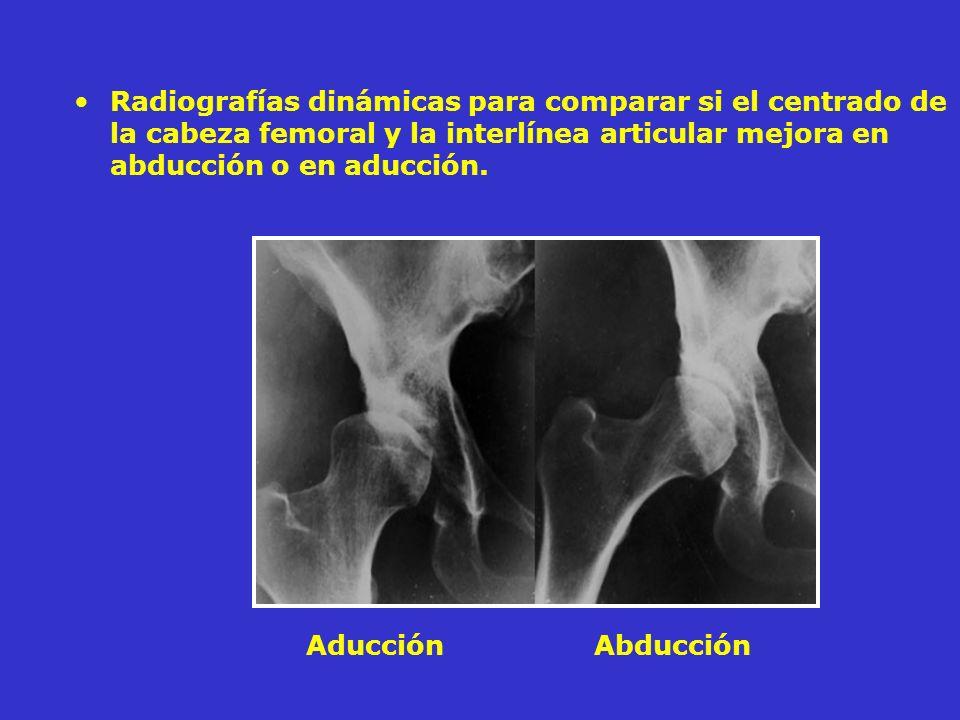 Radiografías dinámicas para comparar si el centrado de la cabeza femoral y la interlínea articular mejora en abducción o en aducción. Aducción Abducci