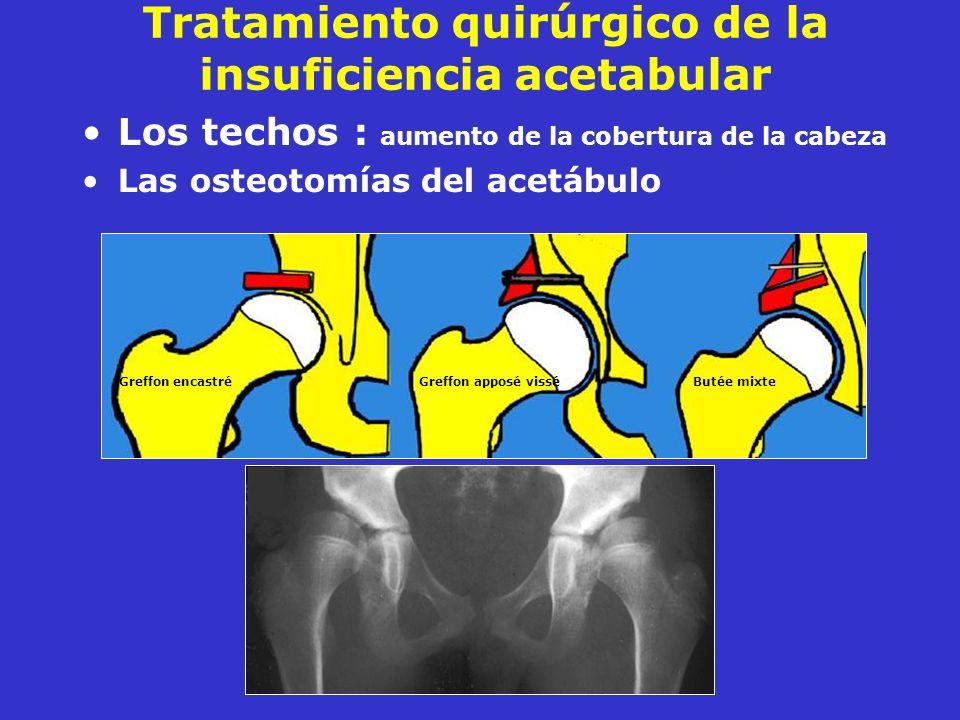 Tratamiento quirúrgico de la insuficiencia acetabular Los techos : aumento de la cobertura de la cabeza Las osteotomías del acetábulo Greffon encastré