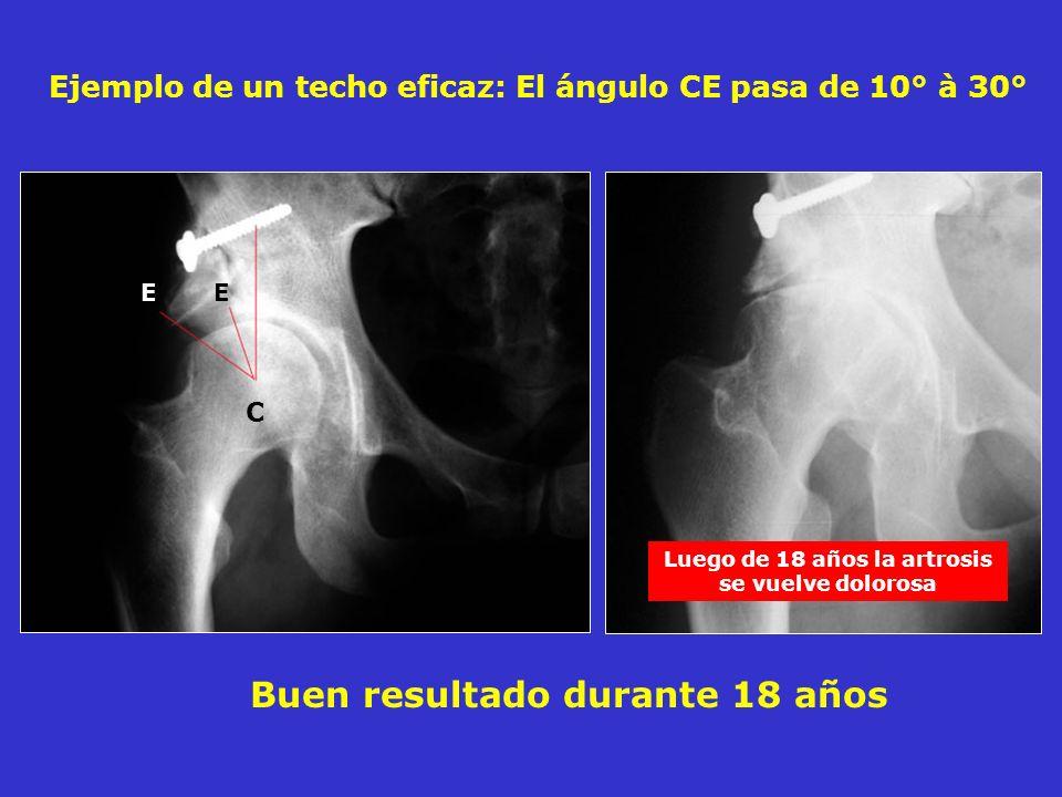Buen resultado durante 18 años Ejemplo de un techo eficaz: El ángulo CE pasa de 10° à 30° C E Luego de 18 años la artrosis se vuelve dolorosa