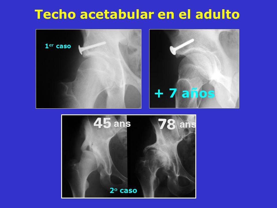 + 7 años Techo acetabular en el adulto 1 er caso 2 o caso