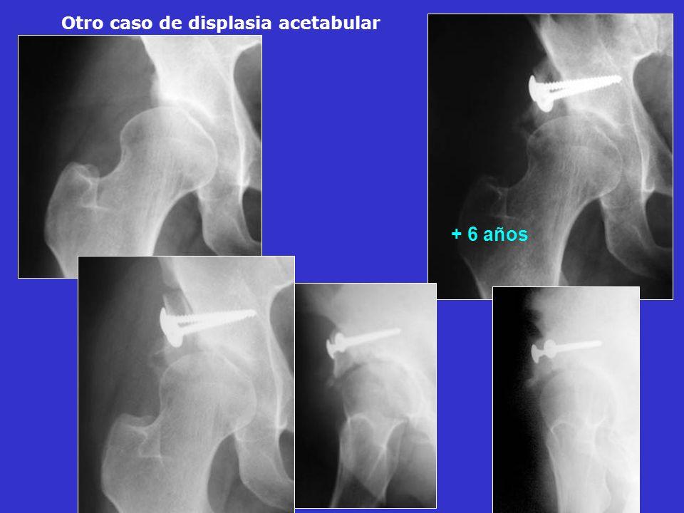 + 6 años Otro caso de displasia acetabular