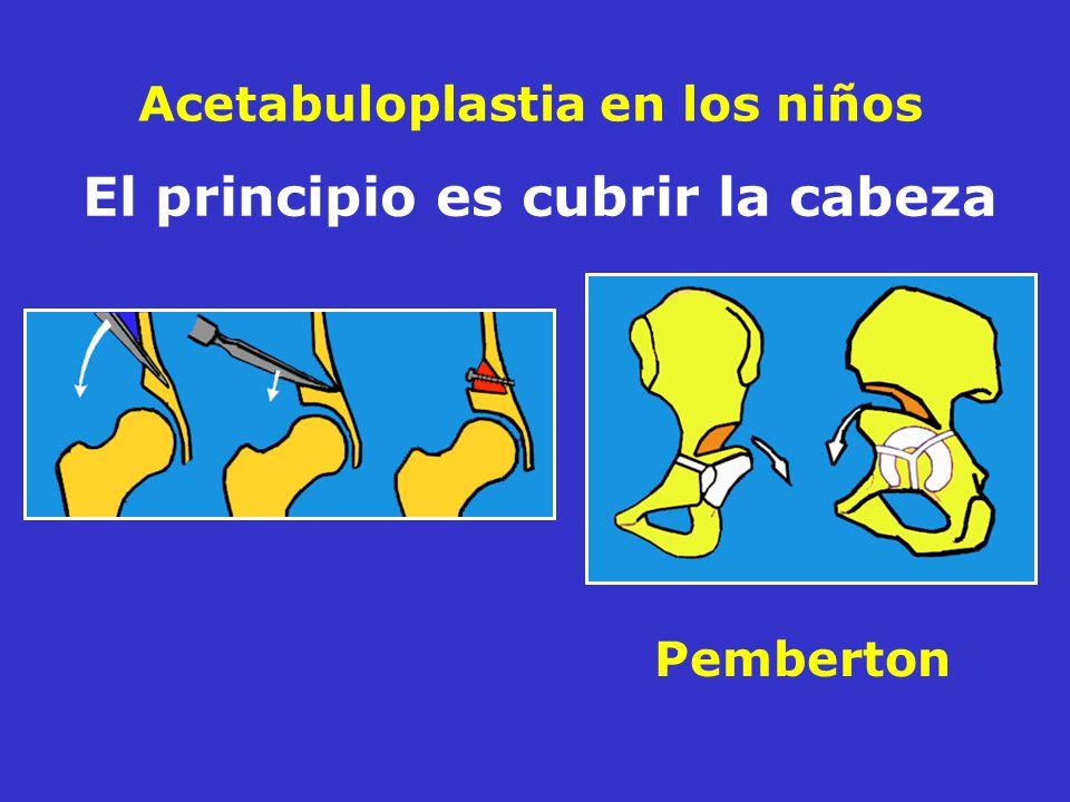 Acetabuloplastia en los niños Pemberton El principio es cubrir la cabeza
