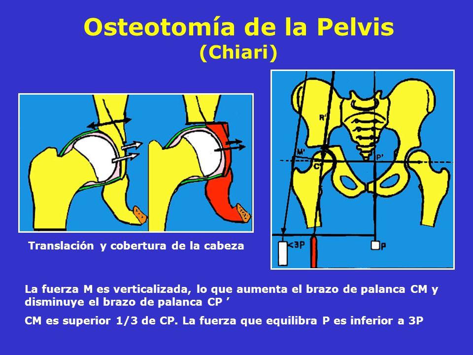 Osteotomía de la Pelvis (Chiari) Translación y cobertura de la cabeza La fuerza M es verticalizada, lo que aumenta el brazo de palanca CM y disminuye