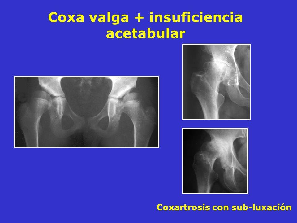 Coxa valga + insuficiencia acetabular Coxartrosis con sub-luxación