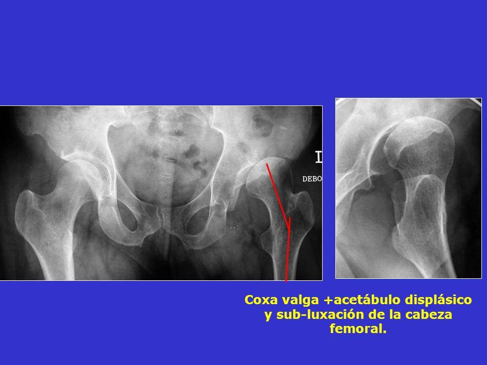Coxa valga +acetábulo displásico y sub-luxación de la cabeza femoral.