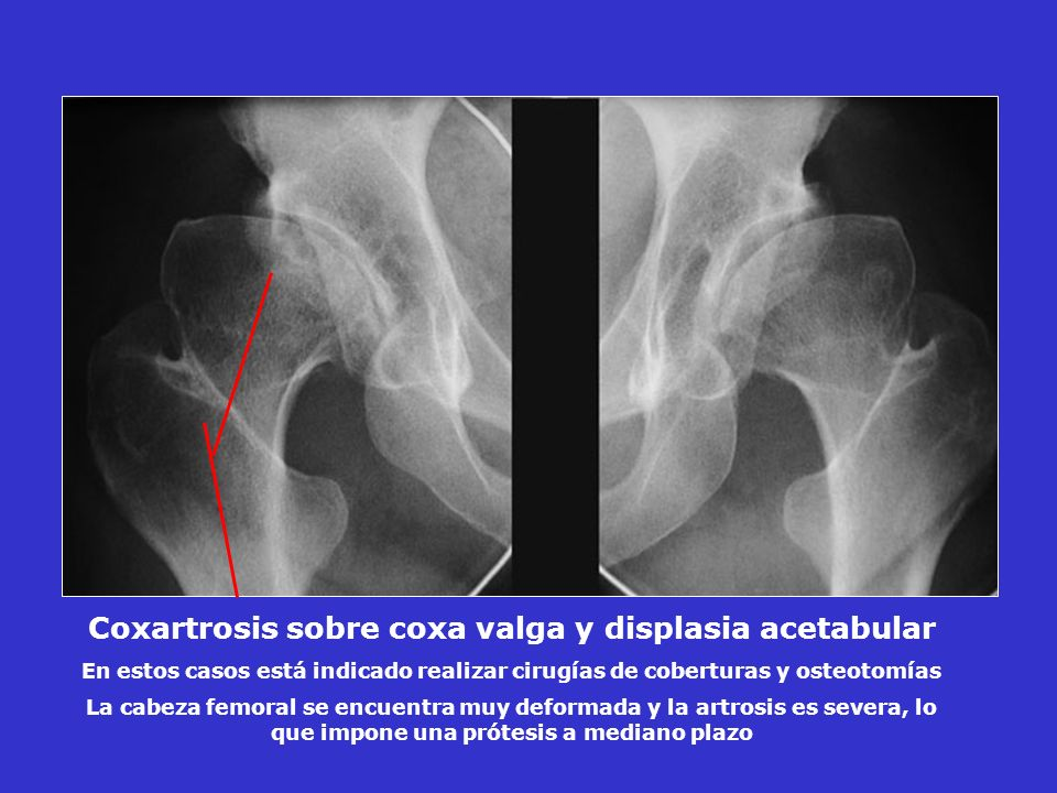 Coxartrosis sobre coxa valga y displasia acetabular En estos casos está indicado realizar cirugías de coberturas y osteotomías La cabeza femoral se en