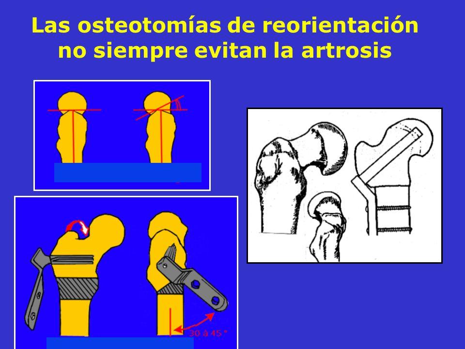 Las osteotomías de reorientación no siempre evitan la artrosis