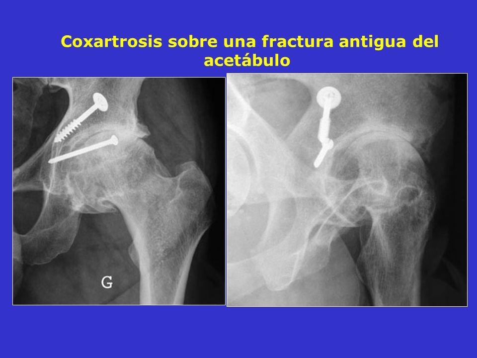 Coxartrosis sobre una fractura antigua del acetábulo