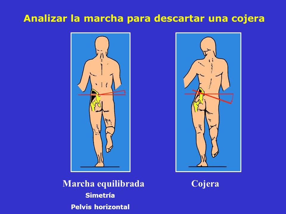 Coxartrosis central y posterior sobre una coxa vara retroversa Pinzamiento