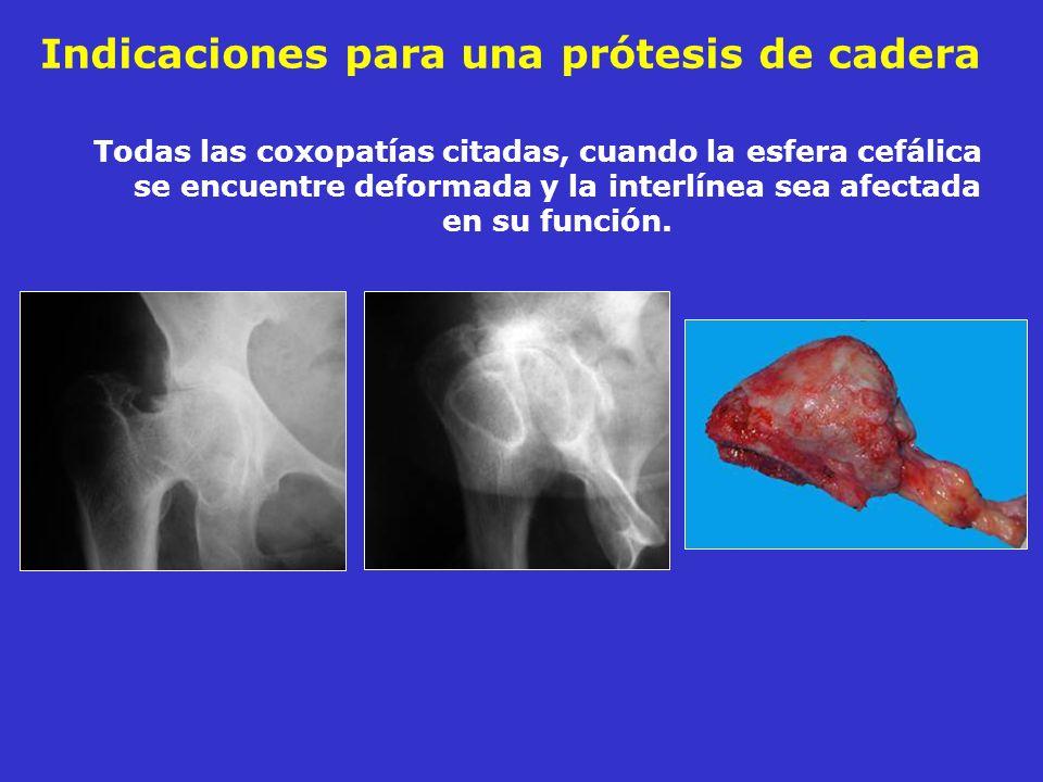 Indicaciones para una prótesis de cadera Todas las coxopatías citadas, cuando la esfera cefálica se encuentre deformada y la interlínea sea afectada e