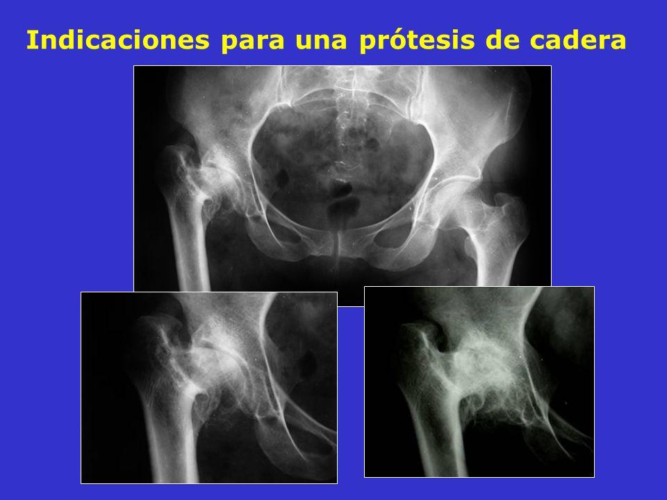 Indicaciones para una prótesis de cadera