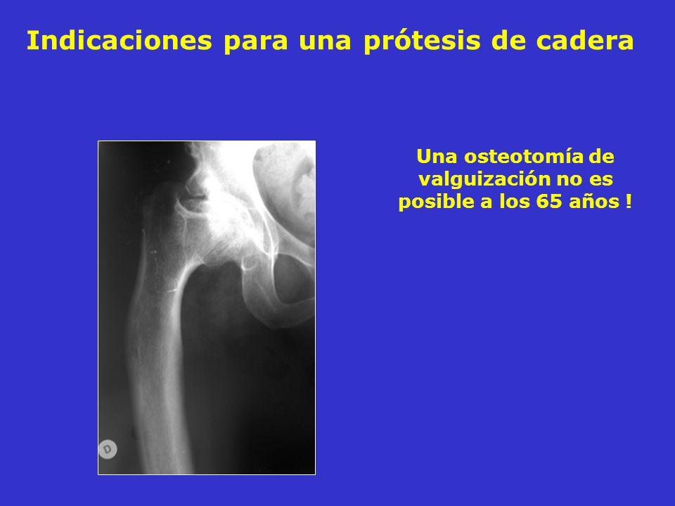 Una osteotomía de valguización no es posible a los 65 años ! Indicaciones para una prótesis de cadera