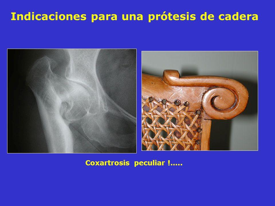 Coxartrosis peculiar !….. Indicaciones para una prótesis de cadera