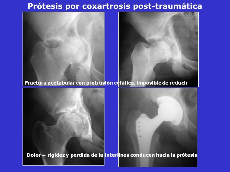 Prótesis por coxartrosis post-traumática Fractura acetabular con protrusión cefálica, imposible de reducir Dolor + rigidez y perdida de la interlinea