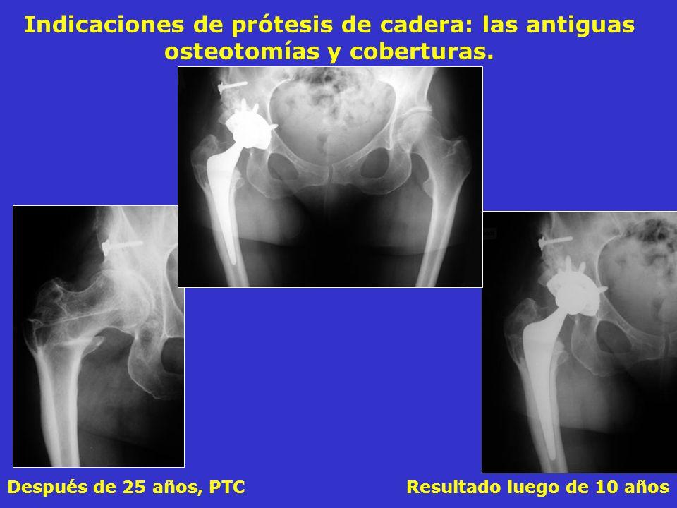 Después de 25 años, PTC Resultado luego de 10 años Indicaciones de prótesis de cadera: las antiguas osteotomías y coberturas.