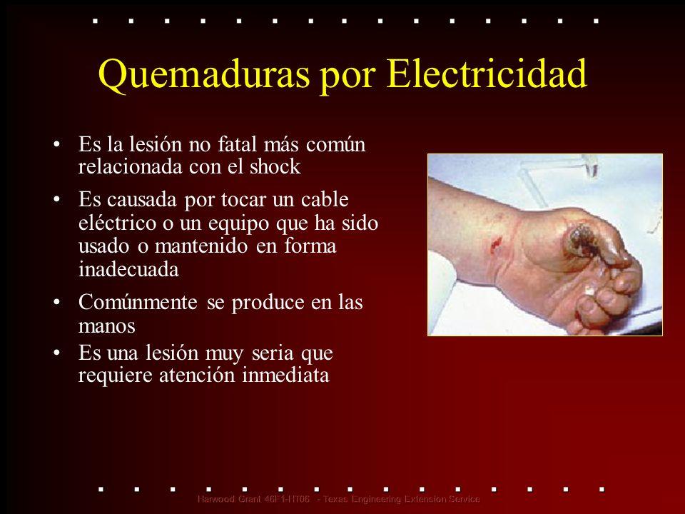 Quemaduras por Electricidad Es la lesión no fatal más común relacionada con el shock Es causada por tocar un cable eléctrico o un equipo que ha sido u
