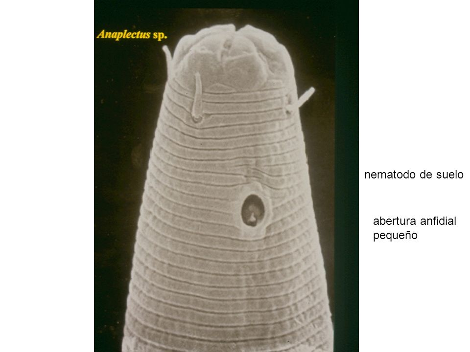 nematodo de suelo abertura anfidial pequeño
