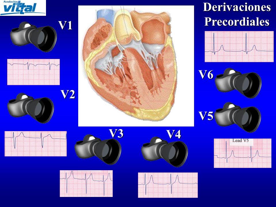 Derivaciones Frontales I II II III III aVR aVL aVF aVF