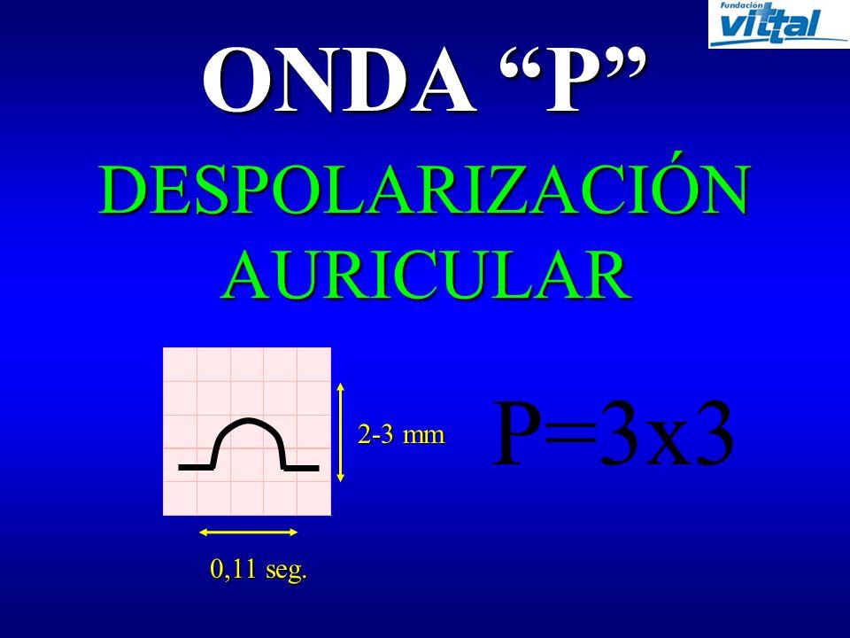 Derivaciones Precordiales V1 V2 V3 V4 V5 V6