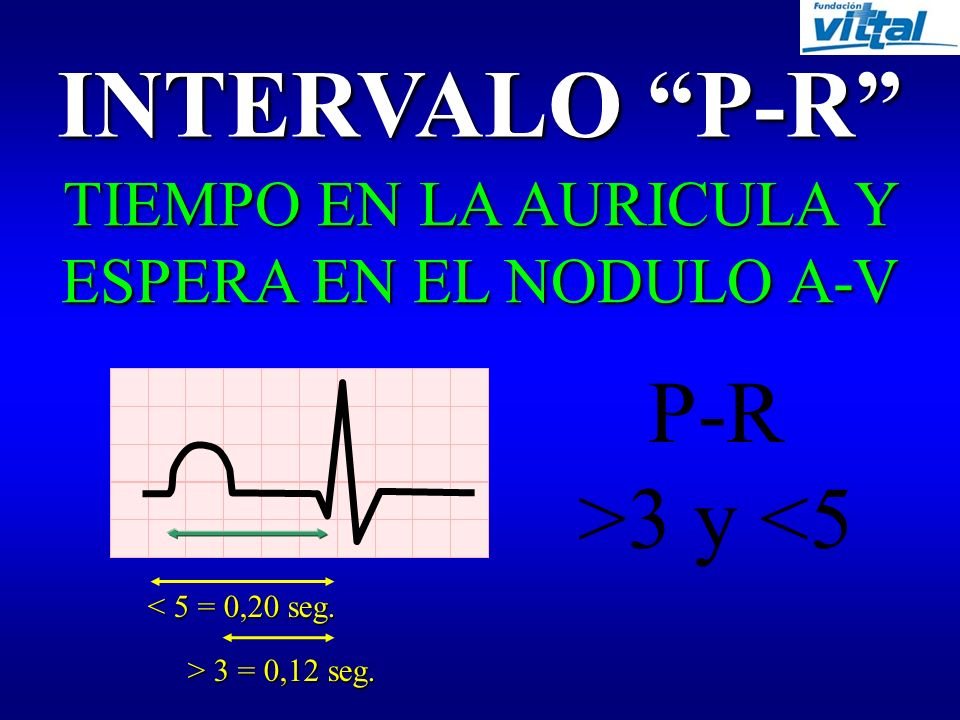 ONDA P DESPOLARIZACIÓN AURICULAR 2-3 mm 0,11 seg. P=3x3