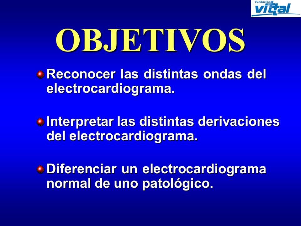 Reconocer las distintas ondas del electrocardiograma.