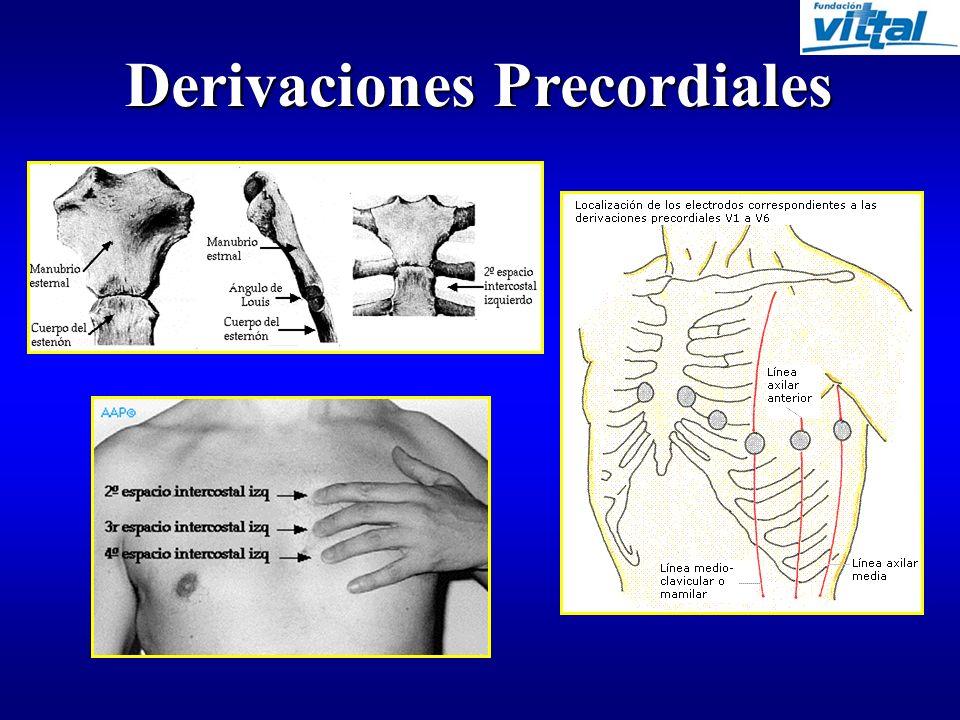 Derivaciones Frontales D2 D1 aVR D3 aVL aVF