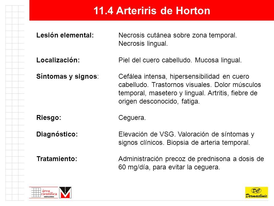 11.4 Arteriris de Horton Lesión elemental:Necrosis cutánea sobre zona temporal.