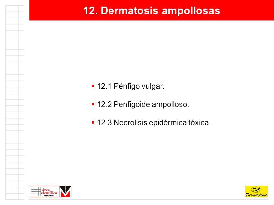 12.Dermatosis ampollosas 12.1 Pénfigo vulgar. 12.2 Penfigoide ampolloso.