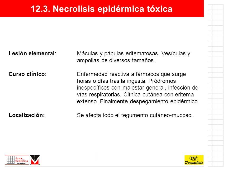 12.3.Necrolisis epidérmica tóxica Lesión elemental:Máculas y pápulas eritematosas.