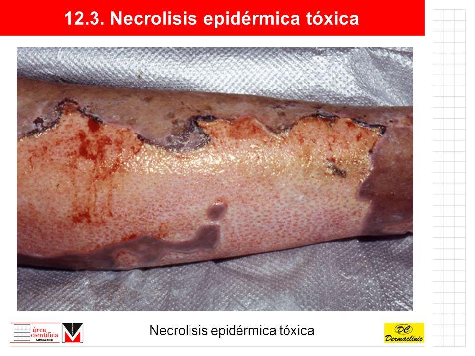 12.3. Necrolisis epidérmica tóxica Necrolisis epidérmica tóxica