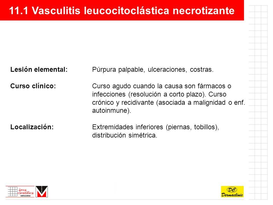 11.1 Vasculitis leucocitoclástica necrotizante Sitomas y signos:Dolor articular, parestesias, fiebre, y la clínica cutánea (edema, púrpura,...).
