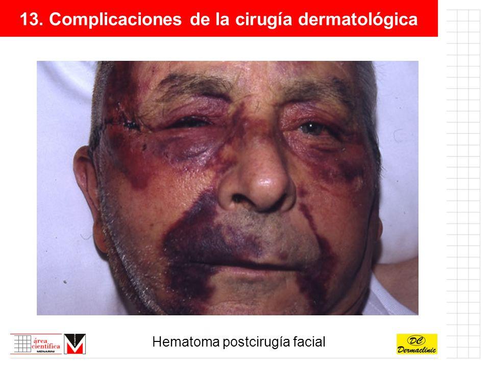 13. Complicaciones de la cirugía dermatológica Hematoma postcirugía facial