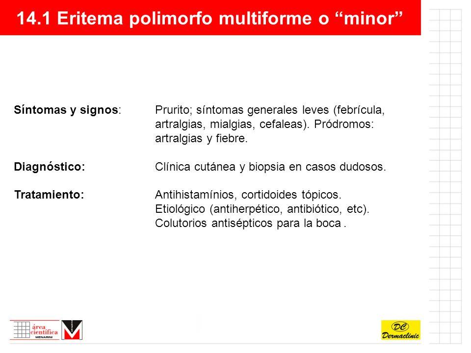 14.1 Eritema polimorfo multiforme o minor Síntomas y signos:Prurito; síntomas generales leves (febrícula, artralgias, mialgias, cefaleas).