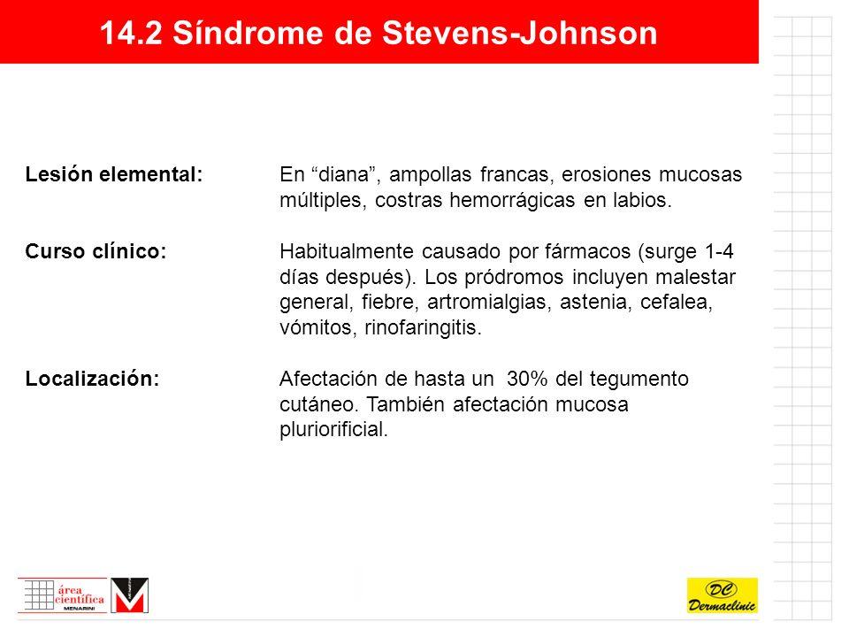 14.2 Síndrome de Stevens-Johnson Lesión elemental:En diana, ampollas francas, erosiones mucosas múltiples, costras hemorrágicas en labios.