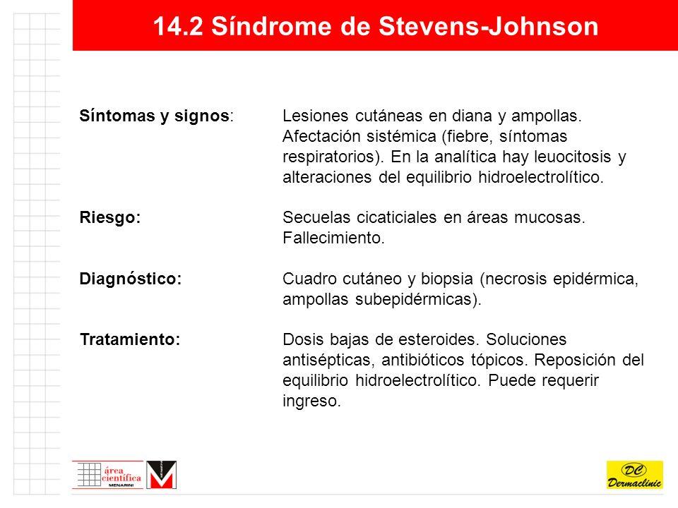 14.2 Síndrome de Stevens-Johnson Síntomas y signos:Lesiones cutáneas en diana y ampollas.