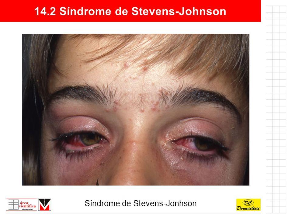 14.2 Síndrome de Stevens-Johnson Síndrome de Stevens-Jonhson