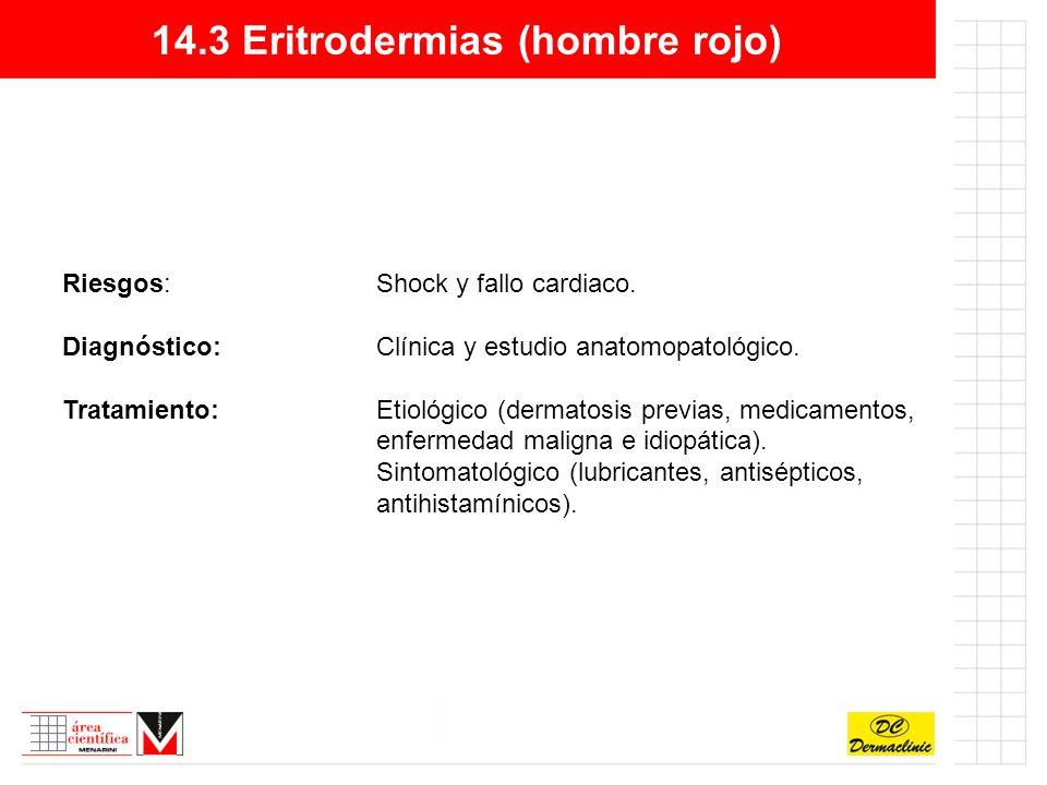 14.3 Eritrodermias (hombre rojo) Riesgos:Shock y fallo cardiaco.