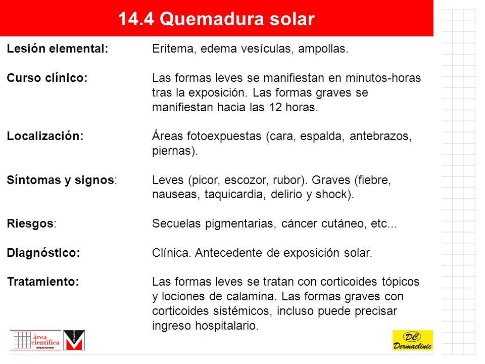 14.4 Quemadura solar Lesión elemental:Eritema, edema vesículas, ampollas.