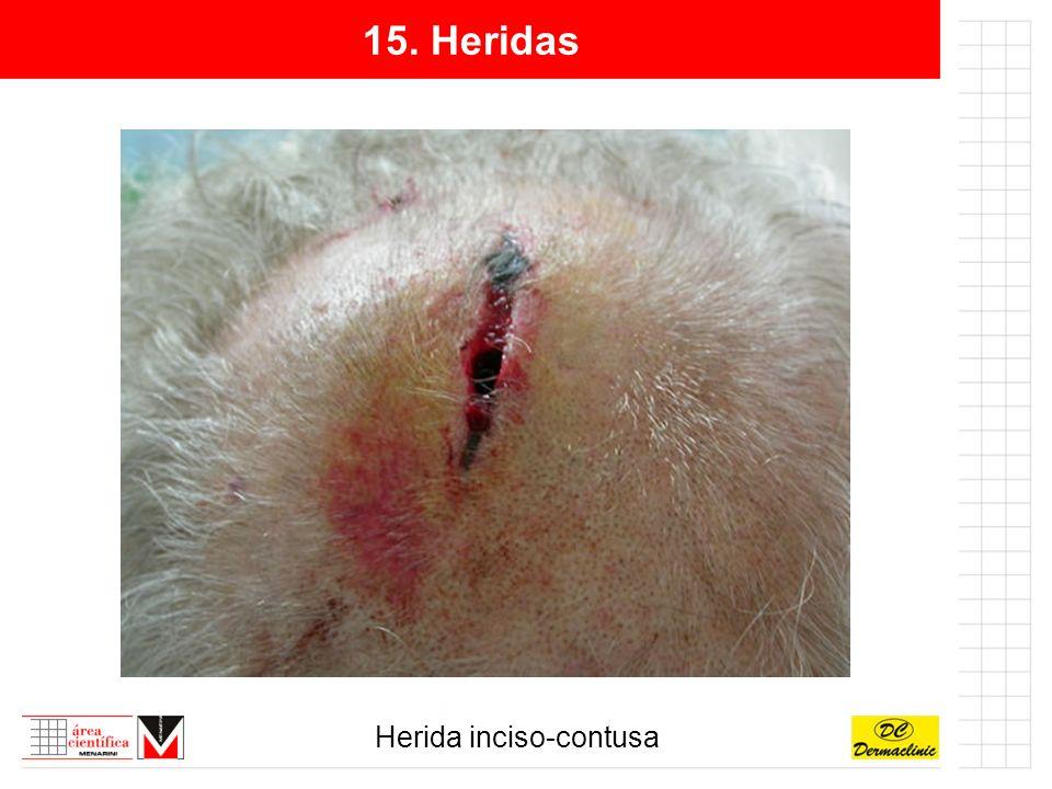 15. Heridas Herida inciso-contusa
