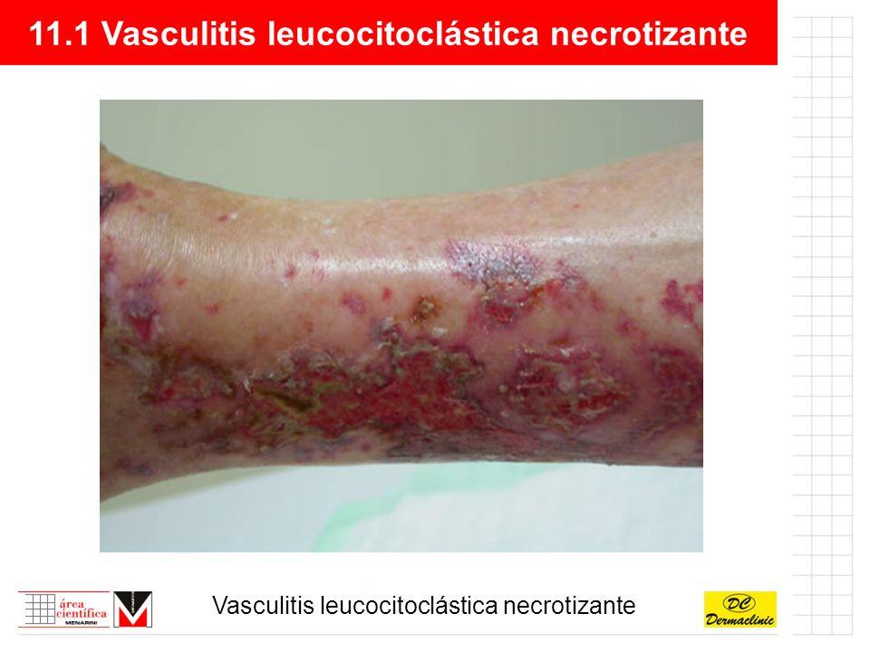 11.1 Vasculitis leucocitoclástica necrotizante Vasculitis leucocitoclástica necrotizante