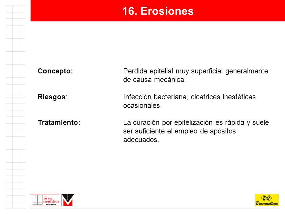 16.Erosiones Concepto:Perdida epitelial muy superficial generalmente de causa mecánica.