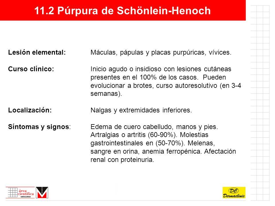 11.2 Púrpura de Schönlein-Henoch Lesión elemental:Máculas, pápulas y placas purpúricas, vívices.