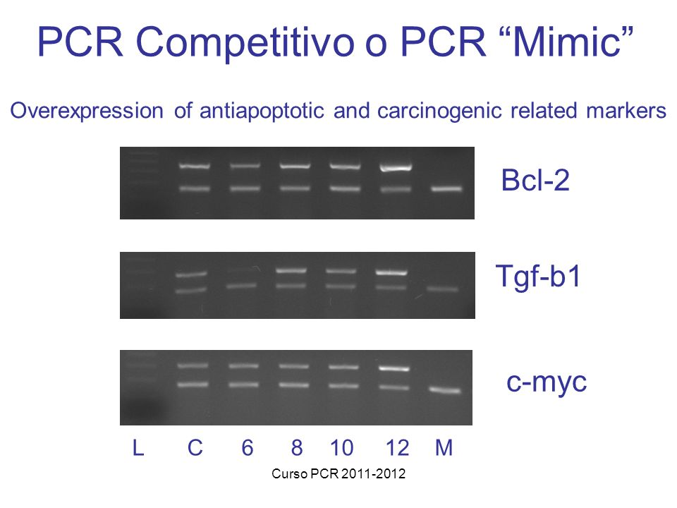 Curso PCR 2011-2012 Overexpression of antiapoptotic and carcinogenic related markers Bcl-2 Tgf-b1 c-myc L C 6 8 10 12 M PCR Competitivo o PCR Mimic