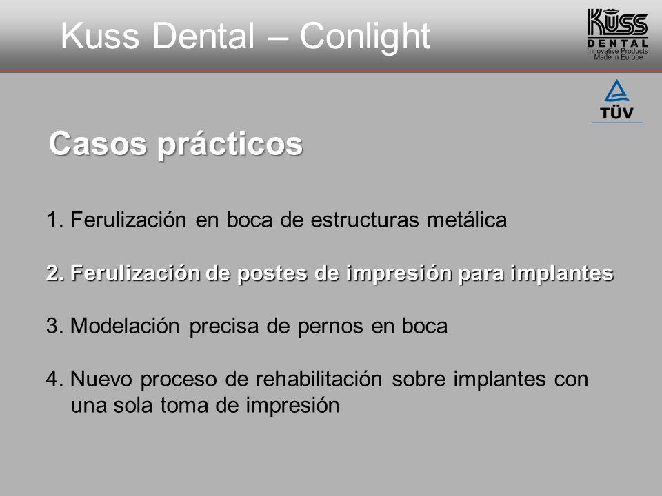 Kuss Dental – Conlight Casos prácticos 1. Ferulización en boca de estructuras metálica 2. Ferulización de postes de impresión para implantes 3. Modela