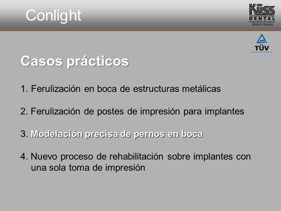 Conlight Casos prácticos 1.Ferulización en boca de estructuras metálicas 2. Ferulización de postes de impresión para implantes Modelación precisa de p